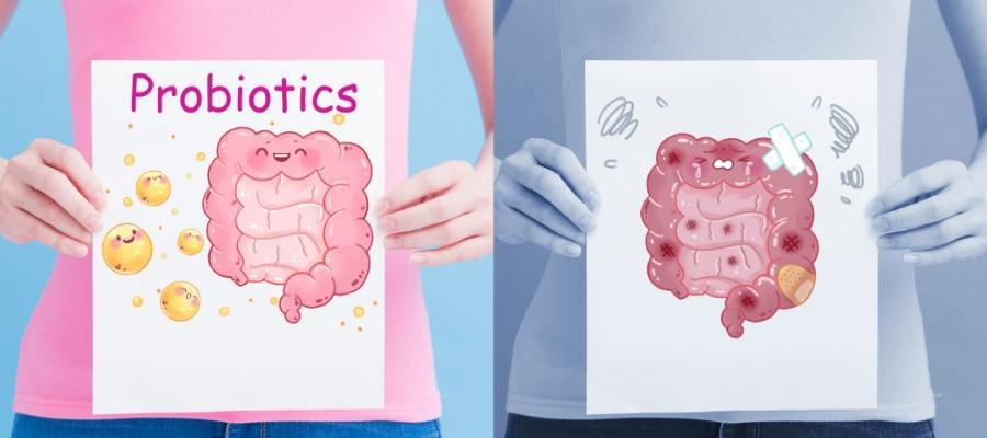 importance of probiotics