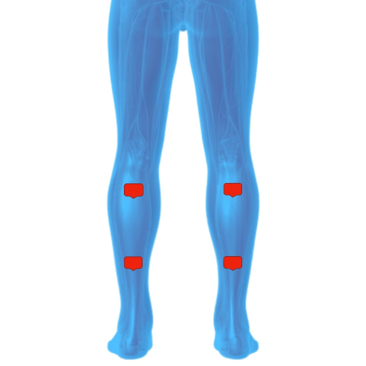 Tens unit placement For Calf Pain