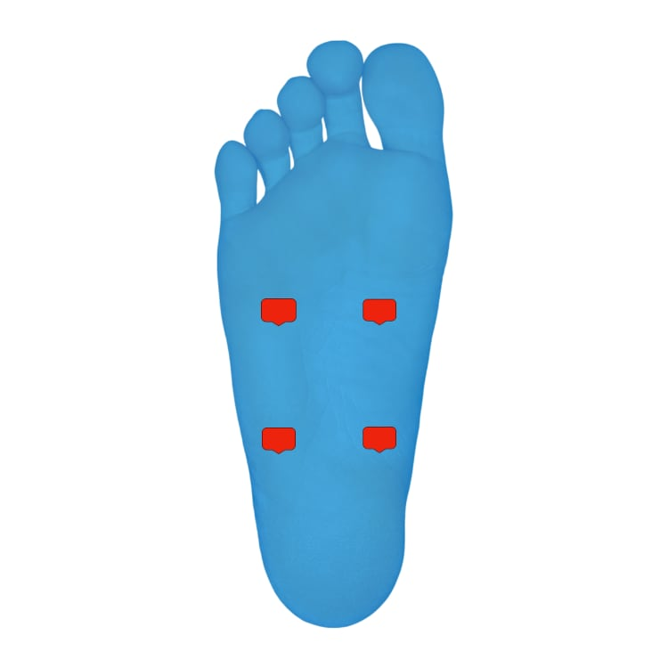 Tens unit placement For Foot Pain