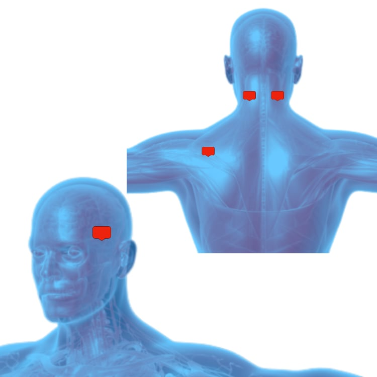 Tens unit placement For Headaches, Migraines