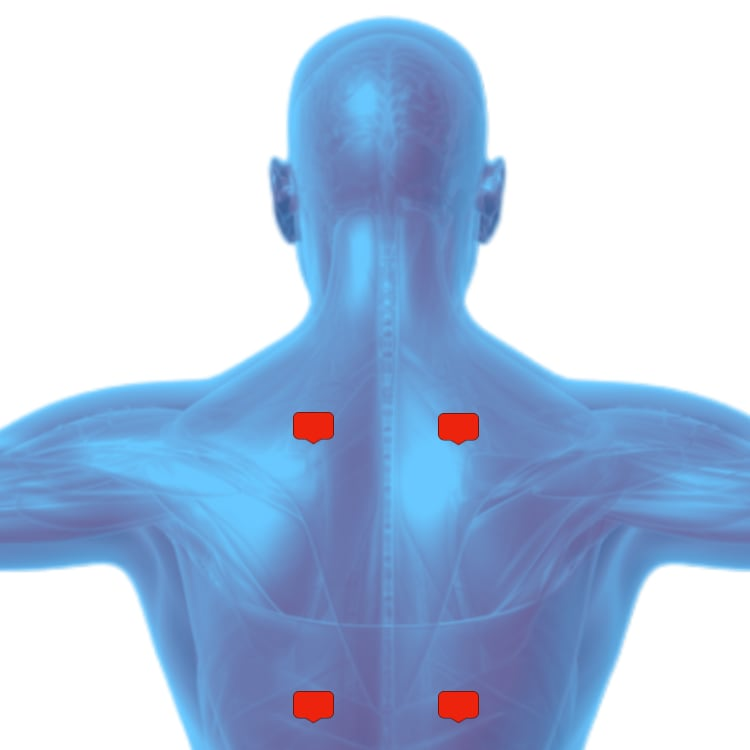 Tens unit placement for back pain