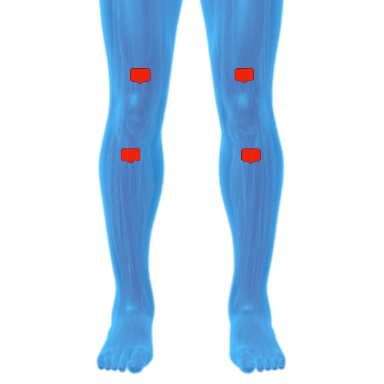 Tens unit placement for knee pain